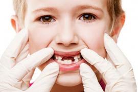 Bệnh lý sâu răng ở trẻ em và những điều cần biết
